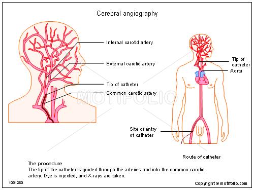 Cerebral angiography Illustrations