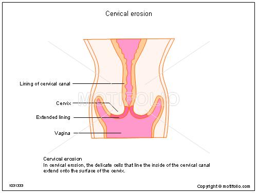 Cervical Erosion Illustrations