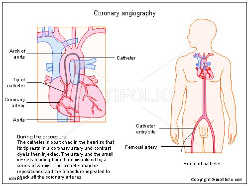 Coronary
