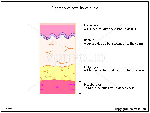 Degrees of severity of burns, PPT PowerPoint drawing diagrams, templates, images, slides