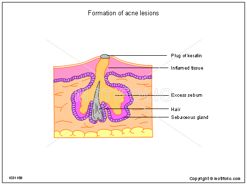 formation of acne lesions illustrations back acne diagram #11