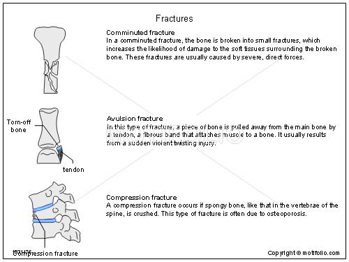 Fractures,