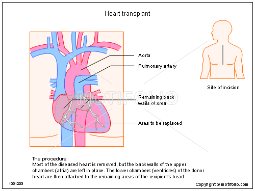 Heart transplant illustrations heart title heart transplant ccuart Images