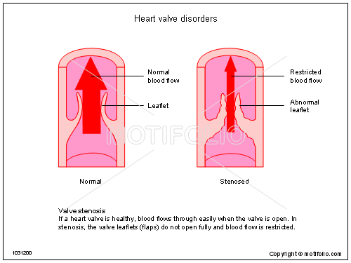 Heart valve disorders illustrations keywords heart valve disorders illustrationfiguredrawingdiagramimage ccuart Gallery