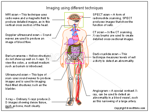 Imaging using different techniques, PPT PowerPoint drawing diagrams, templates, images, slides