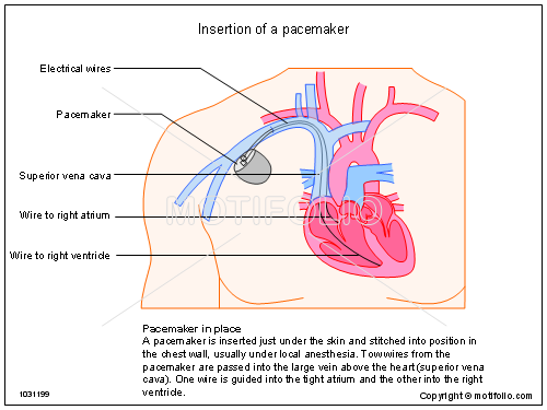 Insertion of a pacemaker 1031199 insertion of a pacemaker illustrations