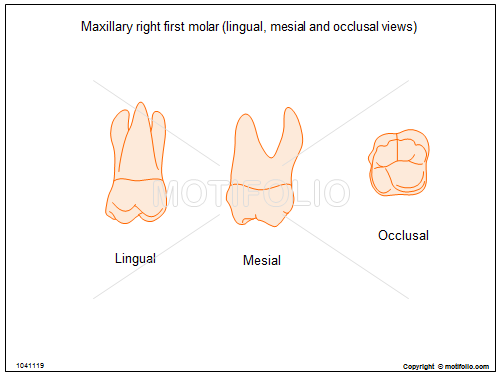 Maxillary right first molar (lingual mesial and occlusal views ...