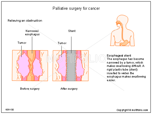 Palliative surgery for cancer, PPT PowerPoint drawing diagrams, templates, images, slides