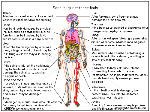 Serious injuries to the body, PPT PowerPoint drawing diagrams, templates, images, slides