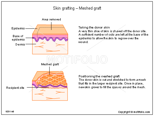 Skin grafting - Meshed graft, PPT PowerPoint drawing diagrams, templates, images, slides
