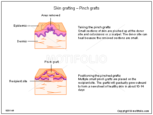 Skin grafting - Pinch grafts, PPT PowerPoint drawing diagrams, templates, images, slides