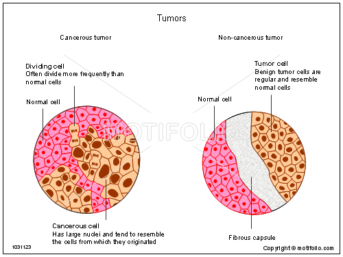 Tumors, PPT PowerPoint drawing diagrams, templates, images, slides