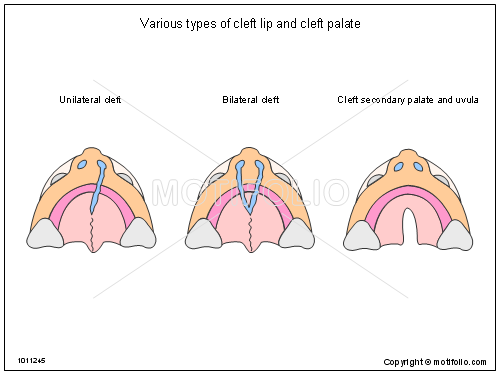 Various types of cleft lip and cleft palate Illustrations